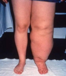 Review of Currently Available Treatment Modalities for Lymphedema ...