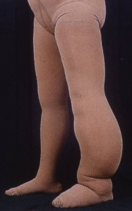 Compression Garments For Lymphedema Custom Or Ready Made 171 Lymphedema Blog