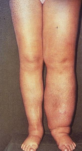 Complete Decongestive Therapy in the Treatment of Lymphedema