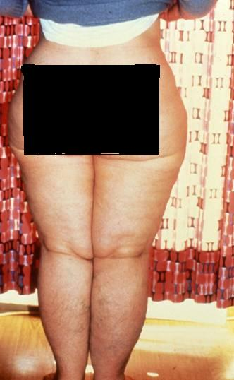 A Closer Look at Lipedema and the Effects on the Lymphatic System