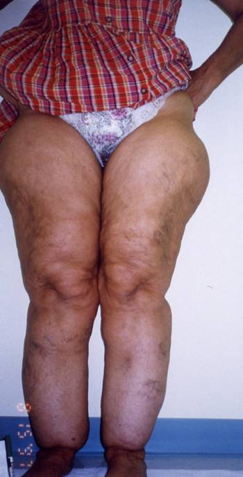 Differences between Lipedema and Lymphedema « Lymphedema Blog