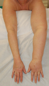 Patient with 7-year history of solid predominant lymphedema of the left arm following breast cancer treatment before SAPL surgery