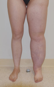 Patient with 17 year history of primary (congenital) solid predominant lymphedema of left leg before SAPL surgery